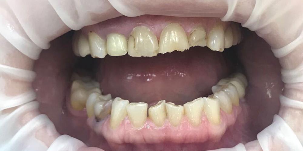 Художественная реставрация фронтальных зубов нанокомпозитным материалом Estelite ASTERIA