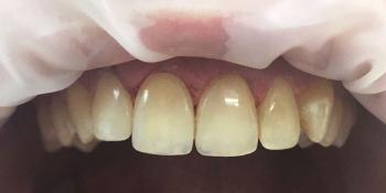 Реставрация зубов фронтальной группы зубов композитными материалами фото после лечения