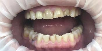 Художественная реставрация фронтальных зубов нанокомпозитным материалом Estelite ASTERIA фото до лечения