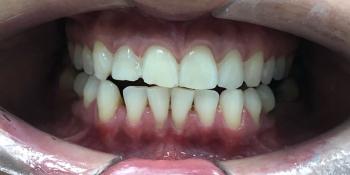 Отбеливание зубов системой ZOOM, результат до и после фото после лечения