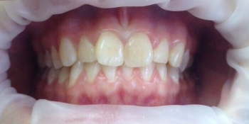 Исправление неровного положения зубов брекетами фото до лечения