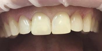 Девушка всегда мечтала о красивых, ровных зубах фото после лечения