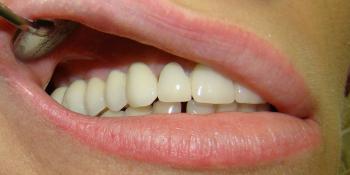 Результат восстановления зубов мостовидным протезом на имплантах фото после лечения
