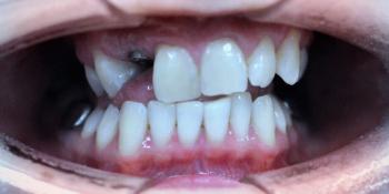 Отбеливание зубов системой ZOOM, фото до и после фото после лечения