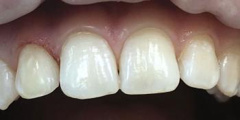 Реставрация зубов фронтального отдела фото после лечения