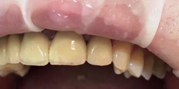 Эндодонтическое лечение и реставрация зуба фото после лечения