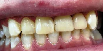 Художественная реставрация фронтальныx зубов нанокомпозитным материалом Estelite ASTERIA фото после лечения