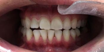 Отбеливание зубов системой ZOOM, результат до и после фото до лечения