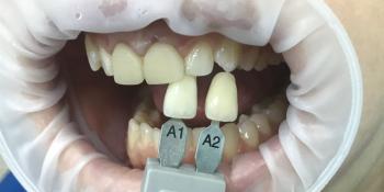 Коронки E-max на два передних зуба на верхней челюсти фото до лечения