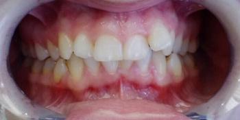 Скученное положение зубов верхней и нижней челюсти фото до лечения