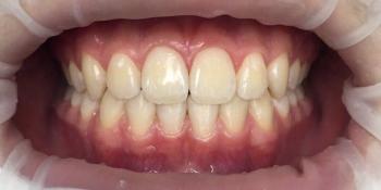 Обратное перекрытие в области центральных резцов фото после лечения