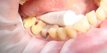 Восстановление коронковой части зубов цельнокерамическими вкладками E-max press фото до лечения
