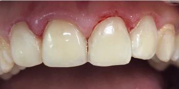 Восстановление анатомической формы зубов и реставрация зубов фото после лечения