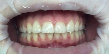 Скученное положение зубов верхней и нижней челюсти фото после лечения