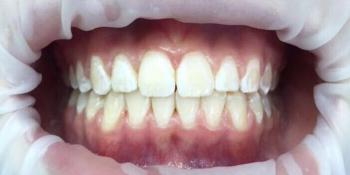 Исправление неровного положения зубов брекетами фото после лечения