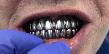 Восстановление зубного ряда нижней и верхней челюстях на имплататах фото до лечения