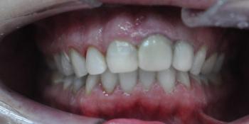 Результат отбеливания зубов ZOOM + чистка фото после лечения