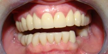 Протезирование передних зубов нижней челюсти винирами фото после лечения
