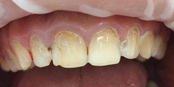 Восстановление анатомической формы зубов и реставрация зубов фото до лечения