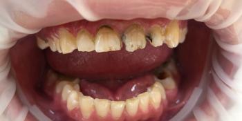 Художественная реставрация фронтальныx зубов нанокомпозитным материалом Estelite ASTERIA фото до лечения