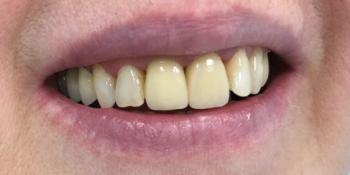Исправили проблемы с передними зубами циркониевыми коронками фото после лечения