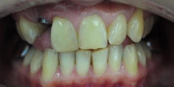 Отбеливание зубов системой ZOOM, фото до и после фото до лечения