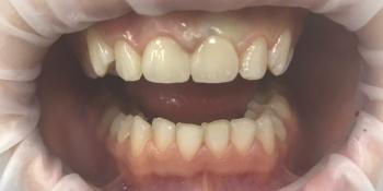 Коронки E-max на два передних зуба на верхней челюсти фото после лечения