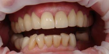 Протезирование передних зубов нижней челюсти винирами фото до лечения
