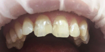 Реставрация зубов фронтальной группы зубов композитными материалами фото до лечения